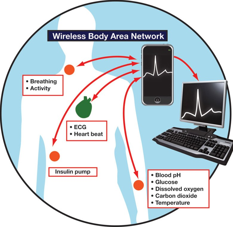 Wireless Body Area Network(WBAN)
